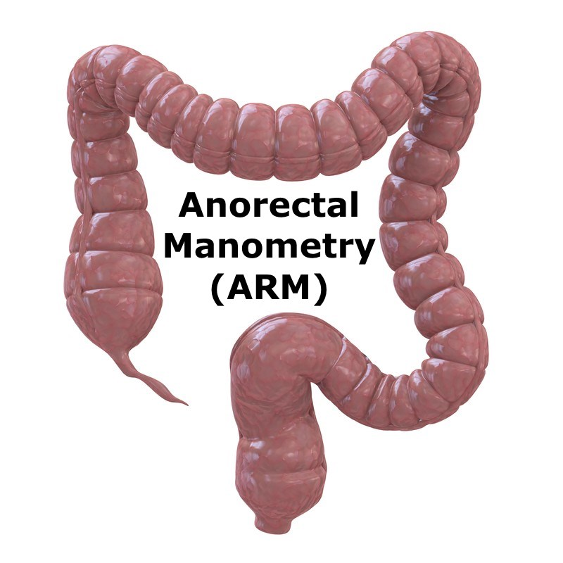 Anorectal Manometry and Care Paths that Leverage Anorectal Manometry
