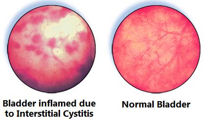 Interstitial_cystitis_bladder.png