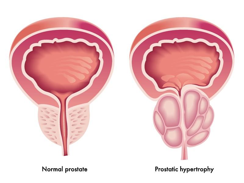 urodynamics in benign prostatic hyperplasia (BPH) patients