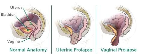prolapse